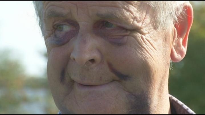 Man van 68 zwaar toegetakeld in Turnhout