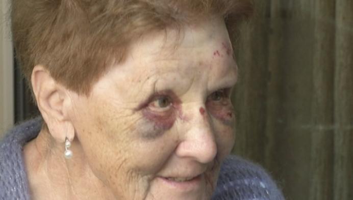 Liliane (83) zwaar toegetakeld na val door kapot paaltje