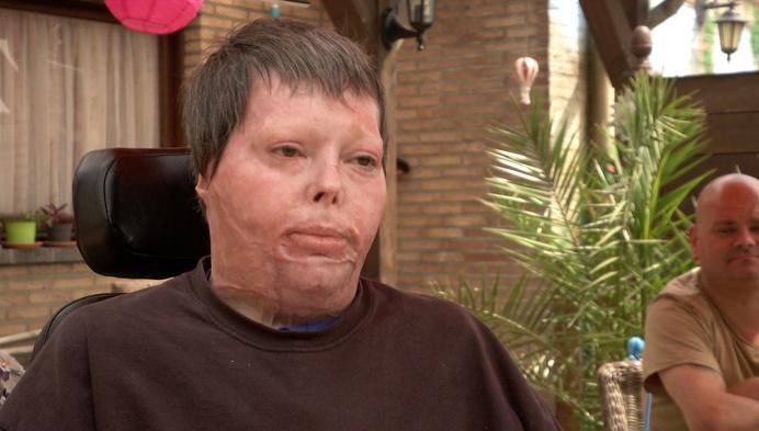 """8 maanden na explosie in caravan is Chantal thuis: """"Ik kom van heel ver"""""""